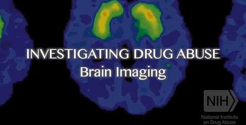 Addiction Science - National Institute on Drug Abuse (NIDA)